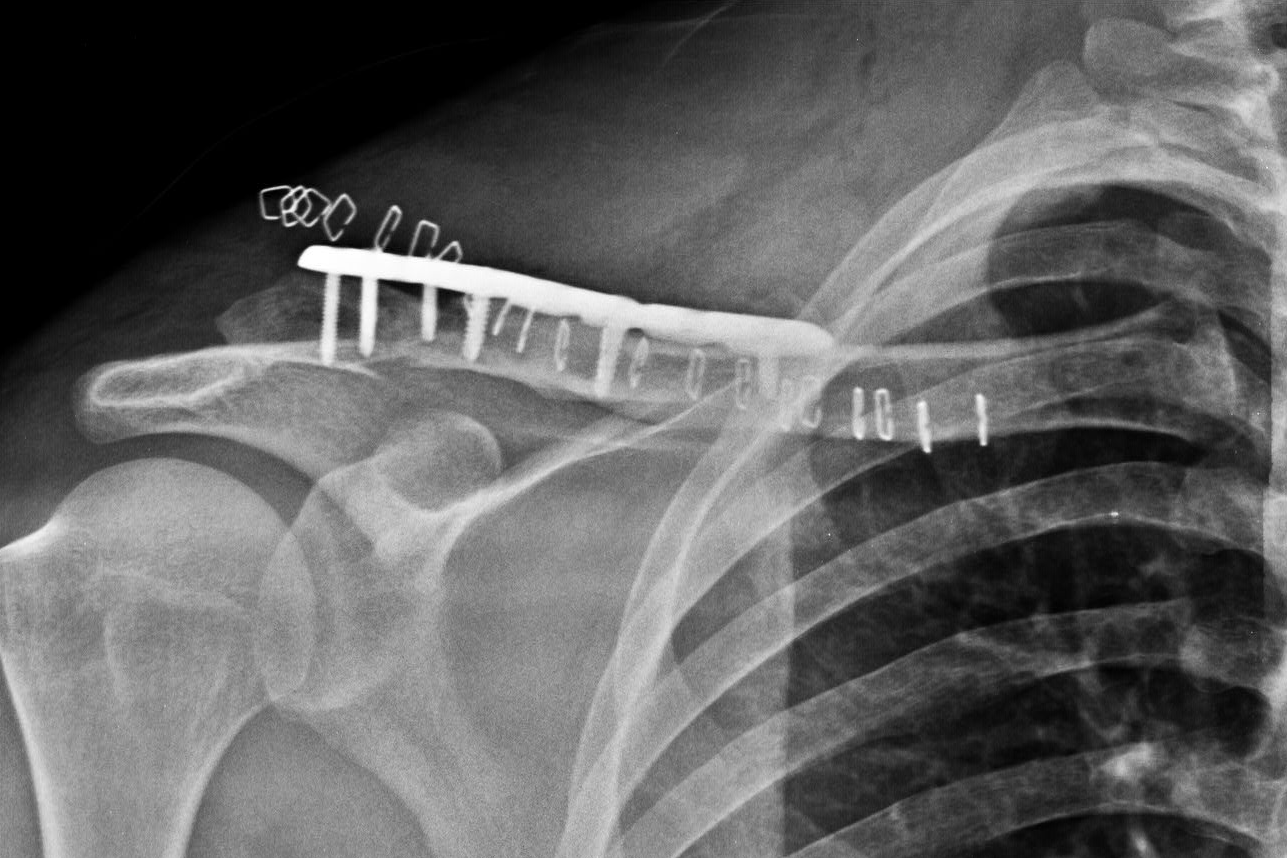 X-ray after the surgery